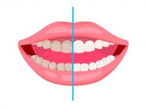 Professionelle Zahnreinigung- vorher & nachher