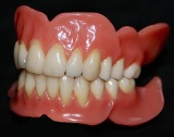 Totalprothesen (Zahnersatz)