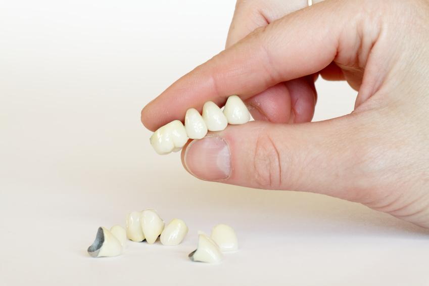 Die Zahnärzte im Lehel sind auch auf den Einsatz von Veneers spezialisiert.
