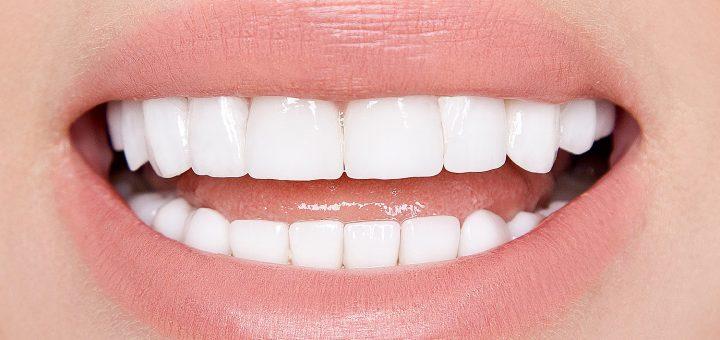 PZR - professionelle Zahnreinigung