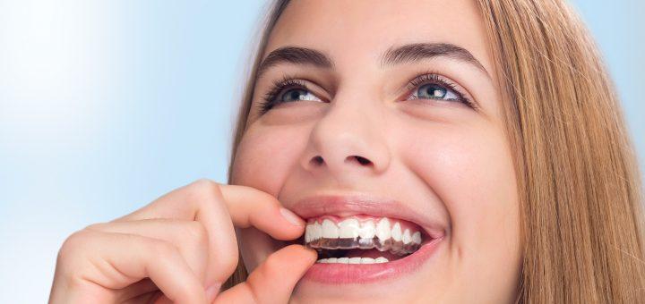 Unsichtbare Zahnkorrektur