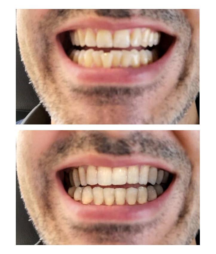 Invisalign - gerade Zähne