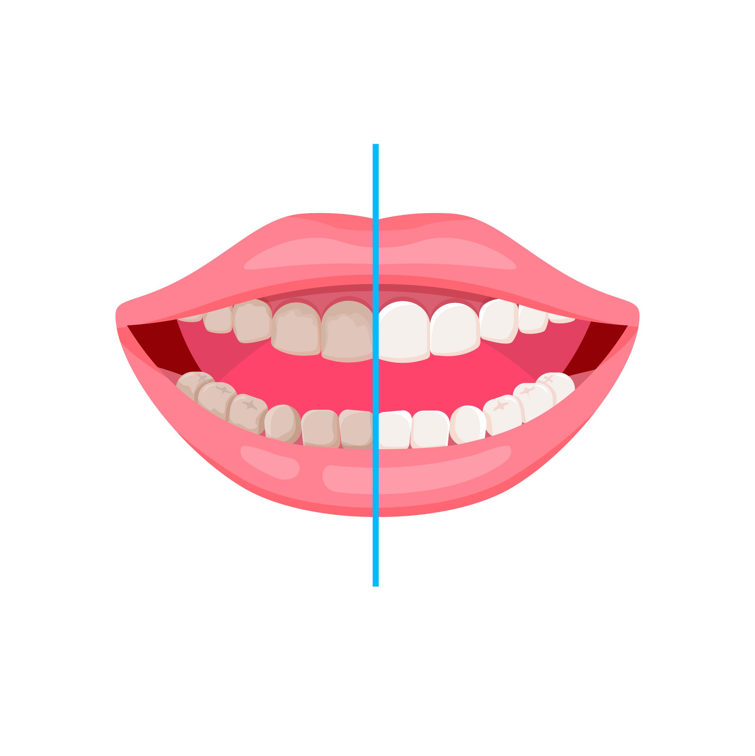 Bleaching/ Zahnaufhellung in München - vorher und nachher